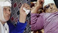 تفاصيل الهجوم على مواطنتين مسيحيتين في ناحية برطلة