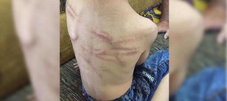 تم أعتقال والده<br>طفل يتعرض للتعذيب في كركوك